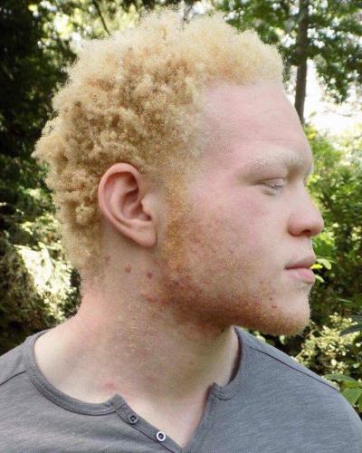 >Modèle albinos musclé dispo 7j/7 - Escort Toulouse